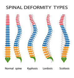 spinal deformity types vector image