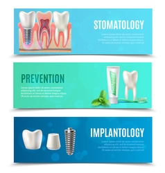 Dental implants 3 horizontal banners set vector