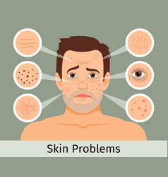 Male facial skin problems vector