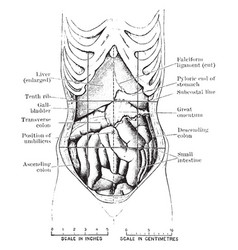 Abdomen showing displacement caused by corset vector