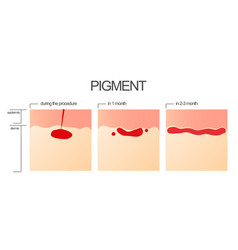 the process of engraftment of the pigment after vector image vector image