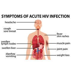 Chart of symtoms of acute HIV infection vector image