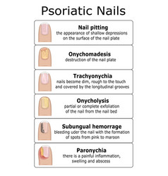 Ilustration of psoriatic nails vector