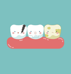 Symptom of dental teeth and tooth concept of dent vector