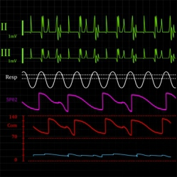 Physiologic monitor background vector