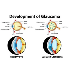 Diagram showing development of glaucoma vector