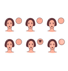 Set of female faces with various skin conditions vector