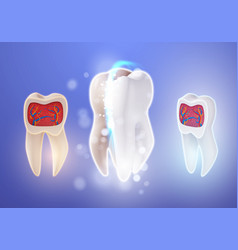 3d realistic teeth cleaning process tooth vector image vector image