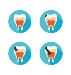 Stages of tooth disease vector image