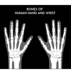 Bones of human hands and wrists vector