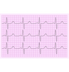 Heart analysis electrocardiogram graph ecg vector