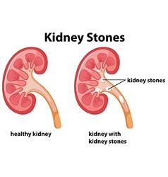 Diagram of kidney stones vector