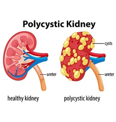 Diagram showing polycystic kidney vector