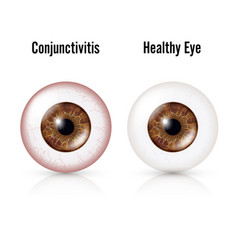 Conjunctivitis red eye healthy eye and eyeball vector