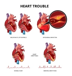 Heart disease infographics vector image