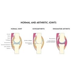 Normal and arthritic human joints vector image