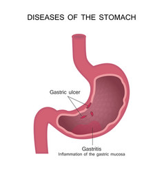 Diseases of the stomach peptic ulcer and vector