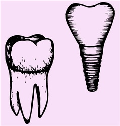 Tooth implant and molar vector