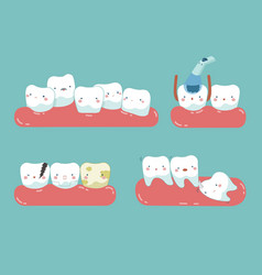 Check up decayed tooth wisdom tooth of dental se vector