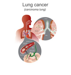 Lung cancer is a malignant lung tumor vector