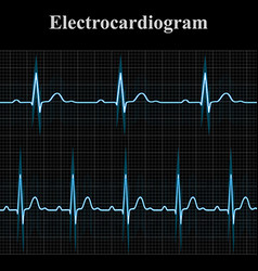 Normal and tachycardial ecg charts vector