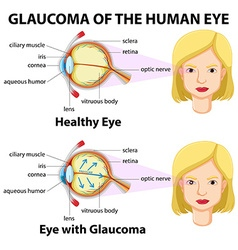 Glaucoma of the human eye vector