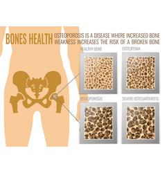 Osteoporosis bones poster vector