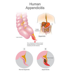 human appendicitis a blocked by a piece of stool vector image vector image