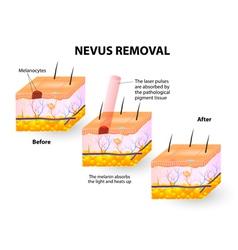 Moles removal vector