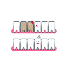 Teeth icons before and after bleaching vector