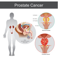 prostate cancer anatomy body part vector image