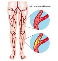 Peripheral arterial disease diagram vector