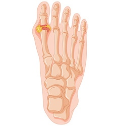 Diagram showing gout toe vector