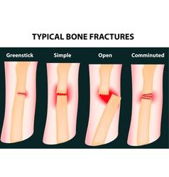Bone fractures vector
