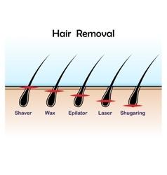 Hair removal colour vector