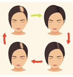 Woman with different stages of hair loss vector