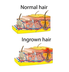 Ingrown and normal hair vector image
