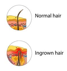 Ingrown hair vector image