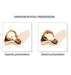 Variation in fetal presentation vector image