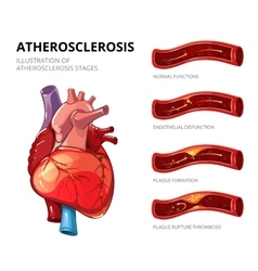 Atherosclerosis fibrous plaque formation vector