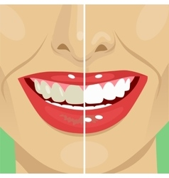 Perfect smile before and after bleaching vector