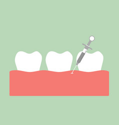 Dental injection for tooth extraction vector