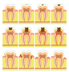 Internal structure of tooth vector image vector image