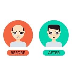 Cartoon man before and after hair transplantation vector