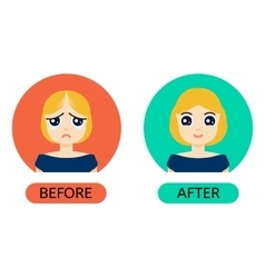 Balding woman before anf after treatment vector
