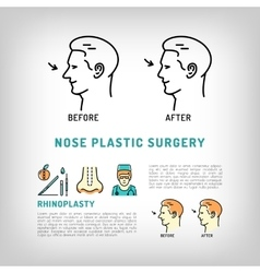 Rhinoplasty Nose Plastic Surgery logos art vector image