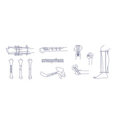Collection of fractured bones and limbs fixed with vector