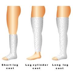 Leg casts vector
