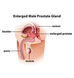 Enlarged male prostate gland vector