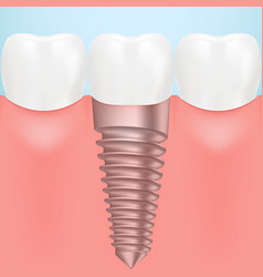 tooth human implant isolated on a background vector image vector image